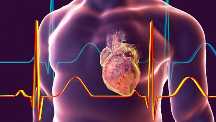 miocarditis-o-infarto