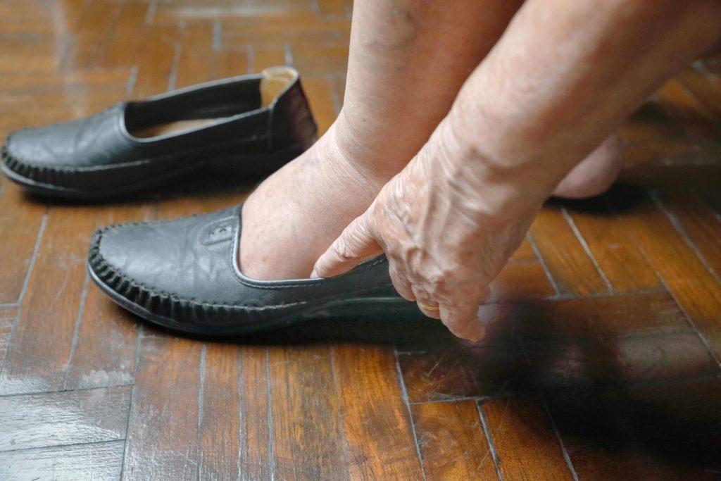 piernas-hinchadas-en-personas-mayores